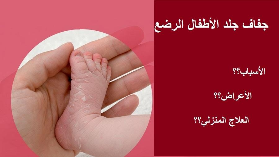 أسباب جفاف جلد الأطفال الرضع