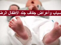 أسباب وأعراض جفاف جلد الأطفال الرضع والعلاج المنزلي
