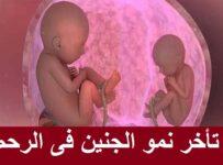 تأخر نمو الجنين داخل الرحم