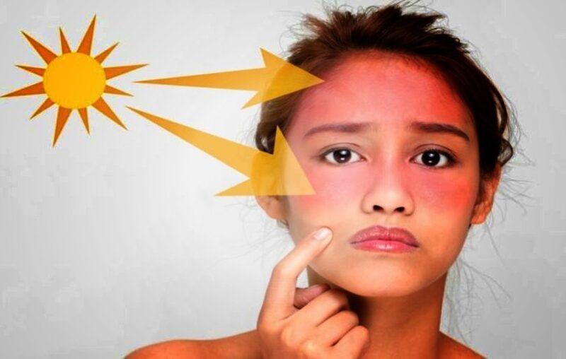 فوائد زيت المورينجا في علاج حروق الشمس
