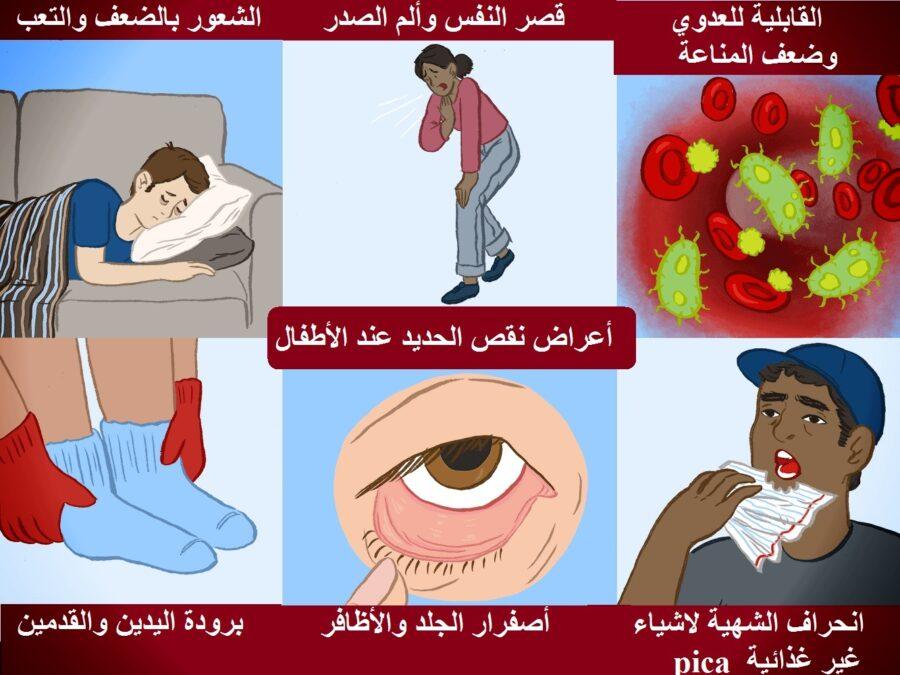 اعراض نقص الحديد عند الاطفال وتأثيره