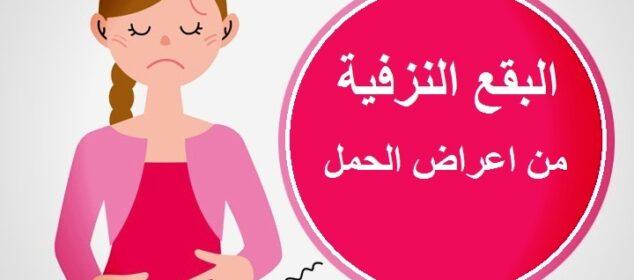 التبقيع من اعراض الحمل المبكرة