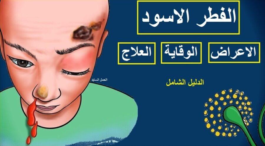 اعراض مرض الفطر الاسود