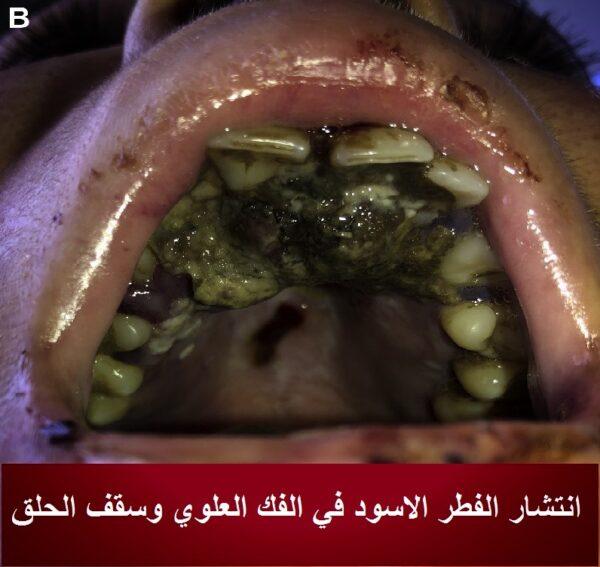 انتشار السواد علي الفك العلوي من اعراض الفطر الاسود