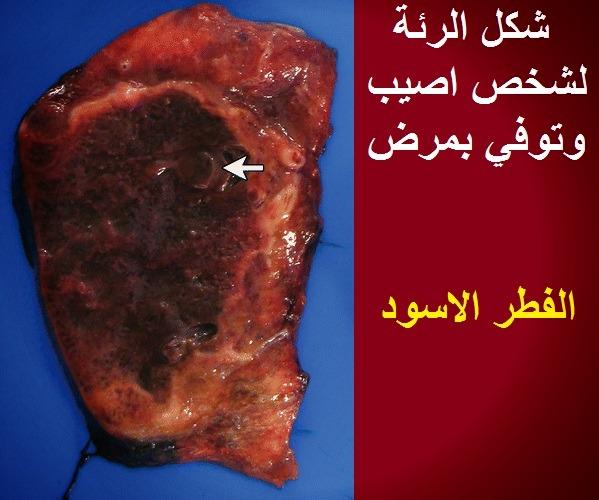 تليف الرئة من اعراض الفطر الاسود الشكل الرئوي