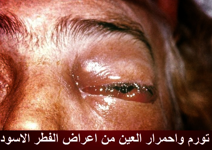 تورم واحمرار العين والجفون من اعراض الفطر الاسود