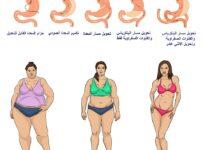 أنواع عمليات إنقاص الوزن